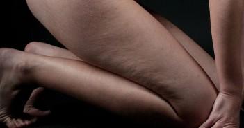 Cellulite cuisse: comment s'en débarrasser définitivement