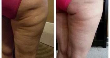 creme anti cellulite maigrir des cuisses